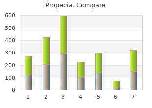 generic propecia 5mg with mastercard