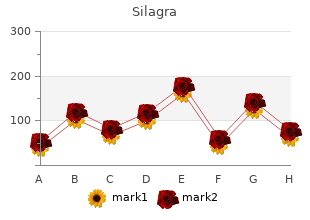 buy silagra with a visa